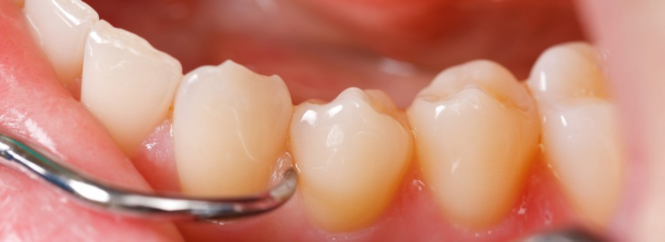 PearliWhyte Periodontics